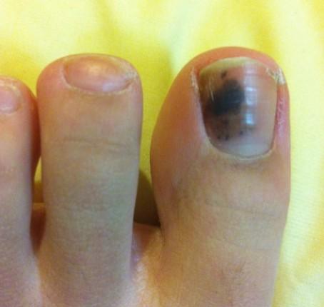 """""""Causas de las uñas negras en los pies"""""""